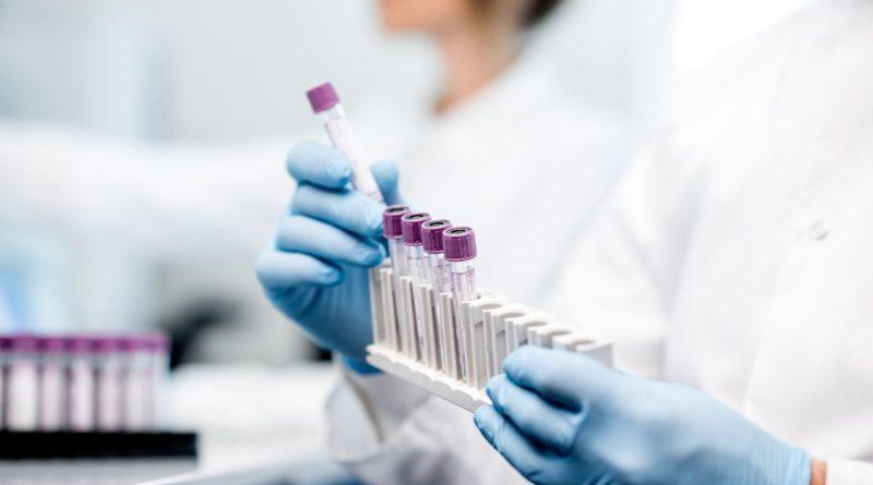 Coronavirus, test su 5 vaccini italiani