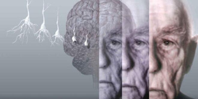 """""""Il mio nome è Alzheimer"""": a Roma la presentazione del docufilm"""